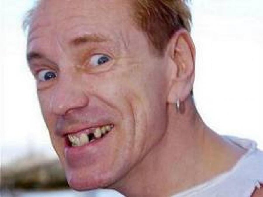 John Lydon und die kaputte Zähne
