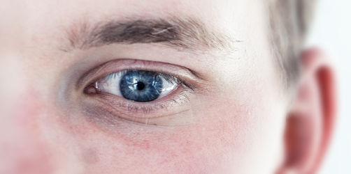 Pollen: Eure Falten unter dem Auge können verraten, ob ihr Allergiker seid