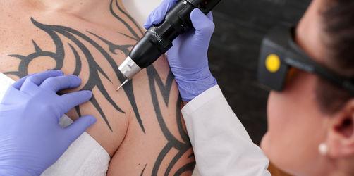 Tattoo-Entfernung mit Laser nur noch durch Ärzte