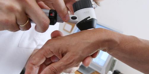 Neue Studie zum Hautkrebs: Mit dieser Methode prüft ihr, ob ihr betroffen seid