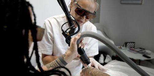 Tattoo-Entfernung bald ein echter Luxus?