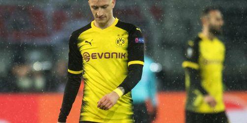 Dortmund wohl ohne Marco Reus zum Top-Spiel beimFCBayern