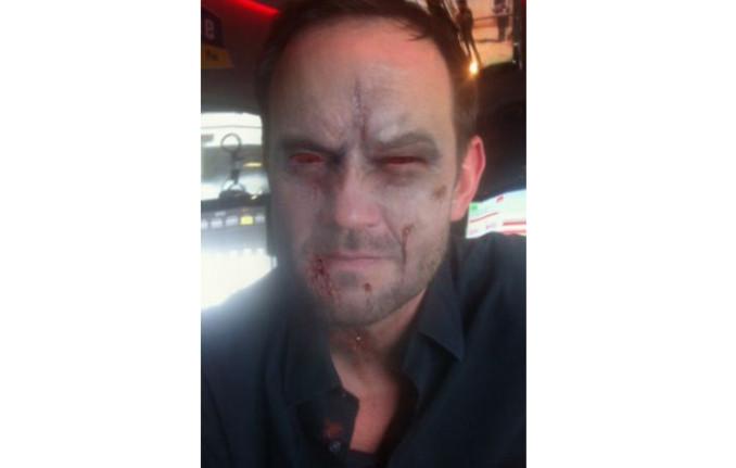 Die antenne bayern moderatoren als halloween zombies for Wir in bayern moderatoren